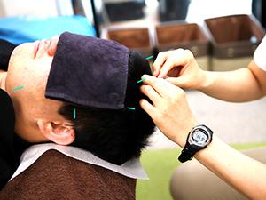 頭への鍼灸