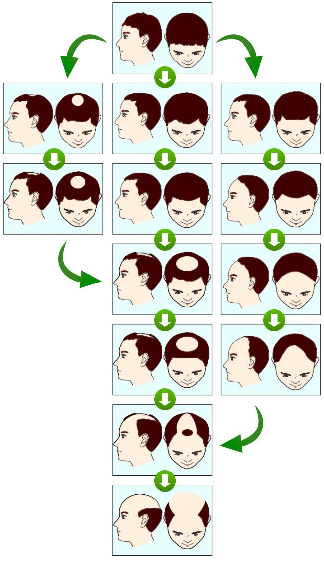 脱毛パターン